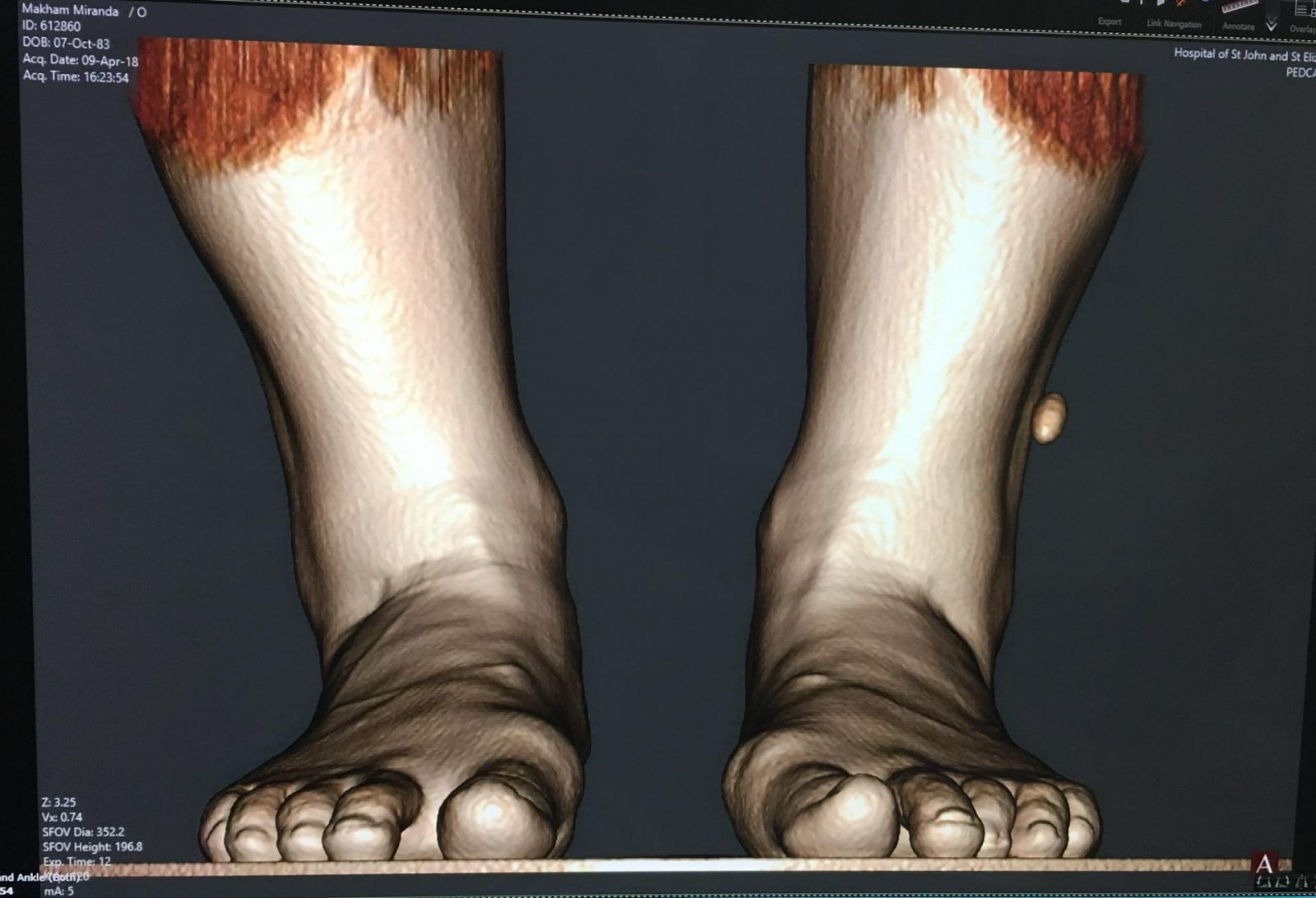 Bunion feet xray