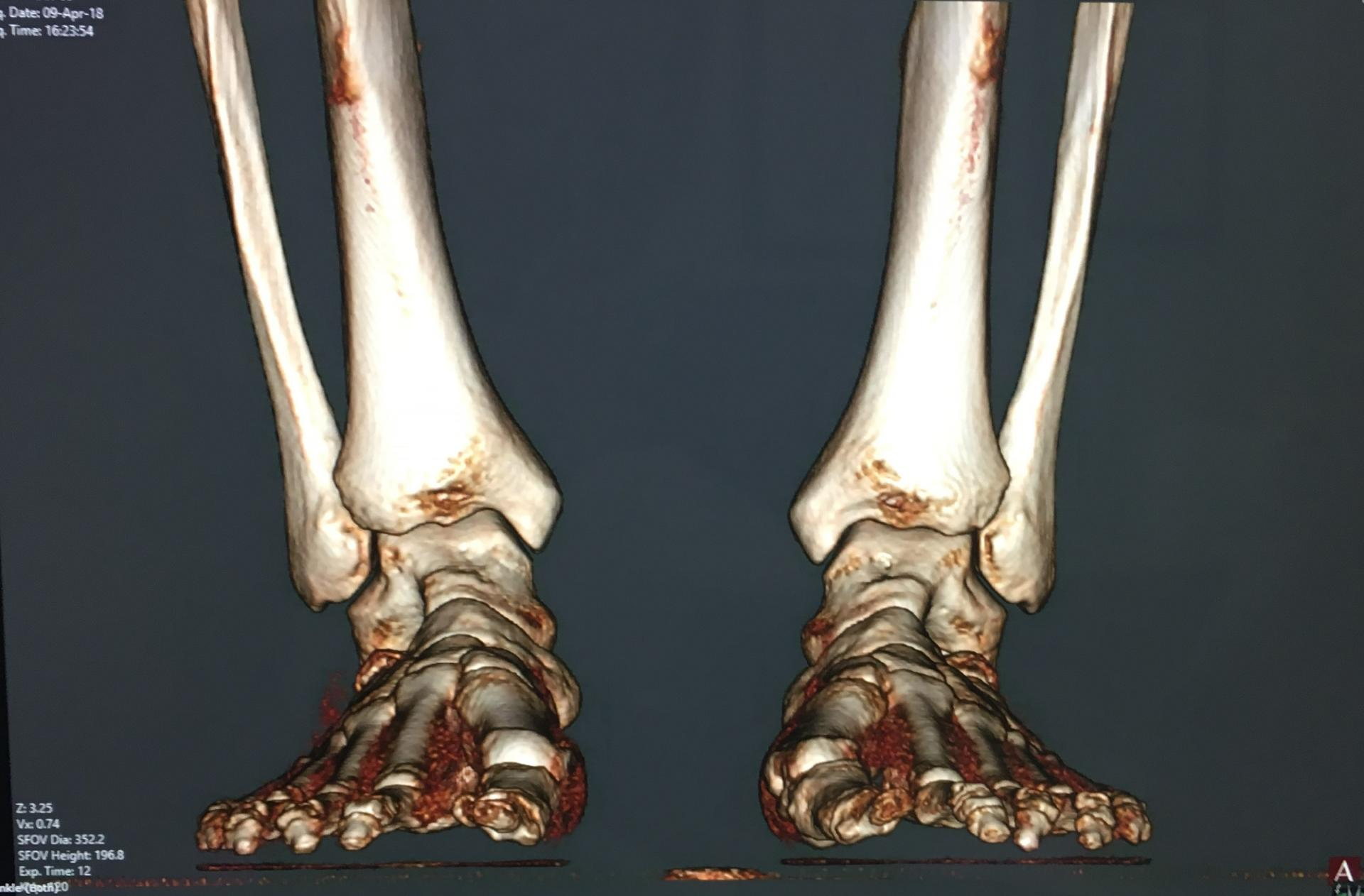 bunion foot xray