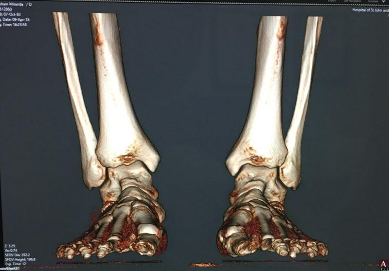 Bunion feet xray